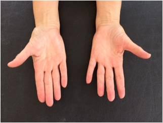 Arthrose des Daumensattelgelenkes Bild der Handinnenflächen